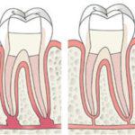 Endodontologie bij Euro Dent Belgie Antwerpen regio