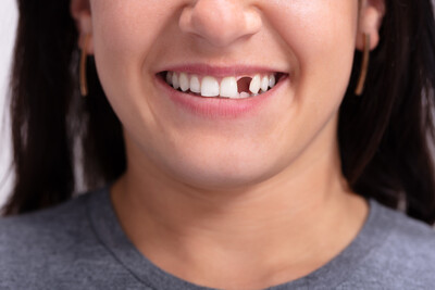 What should I do if my tooth breaks?